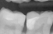 Radiograph-after-small-300x194